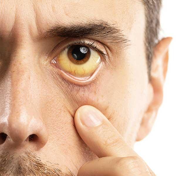 http://mdturk.com/wp-content/uploads/2020/11/hepB-eye.jpg