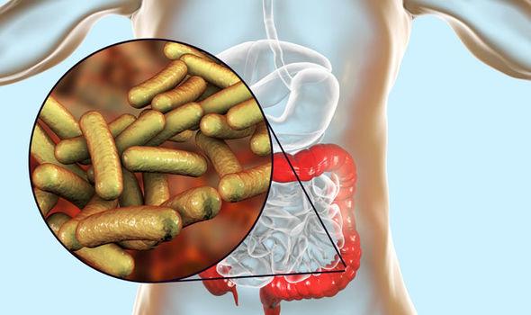 Shigella semptomları: Midede bakteriyel enfeksiyon