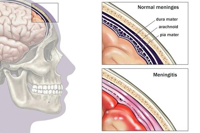 http://mdturk.com/wp-content/uploads/2020/12/1800ss_medicalimages_rm_brain_meninges_illustration.jpg