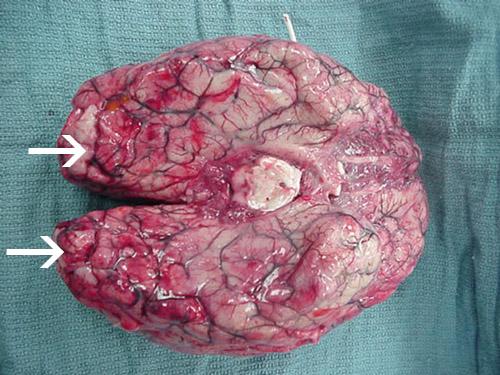 Beyinde, özellikle frontal kortekste yaygın kanama ve nekroz mevcuttur.
