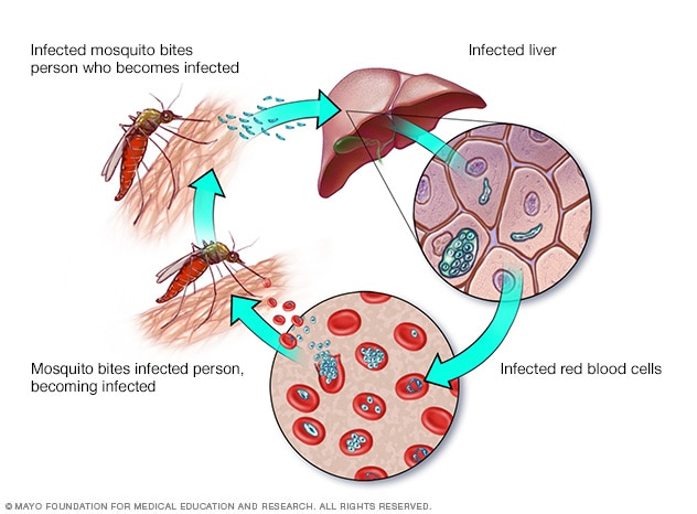 Sıtma: nedenleri, belirtileri ve tedavisi