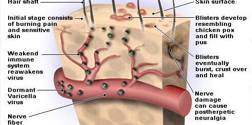 http://mdturk.com/wp-content/uploads/2020/12/shingles-s2-illustration-of-shingles-virus-493x246.jpg