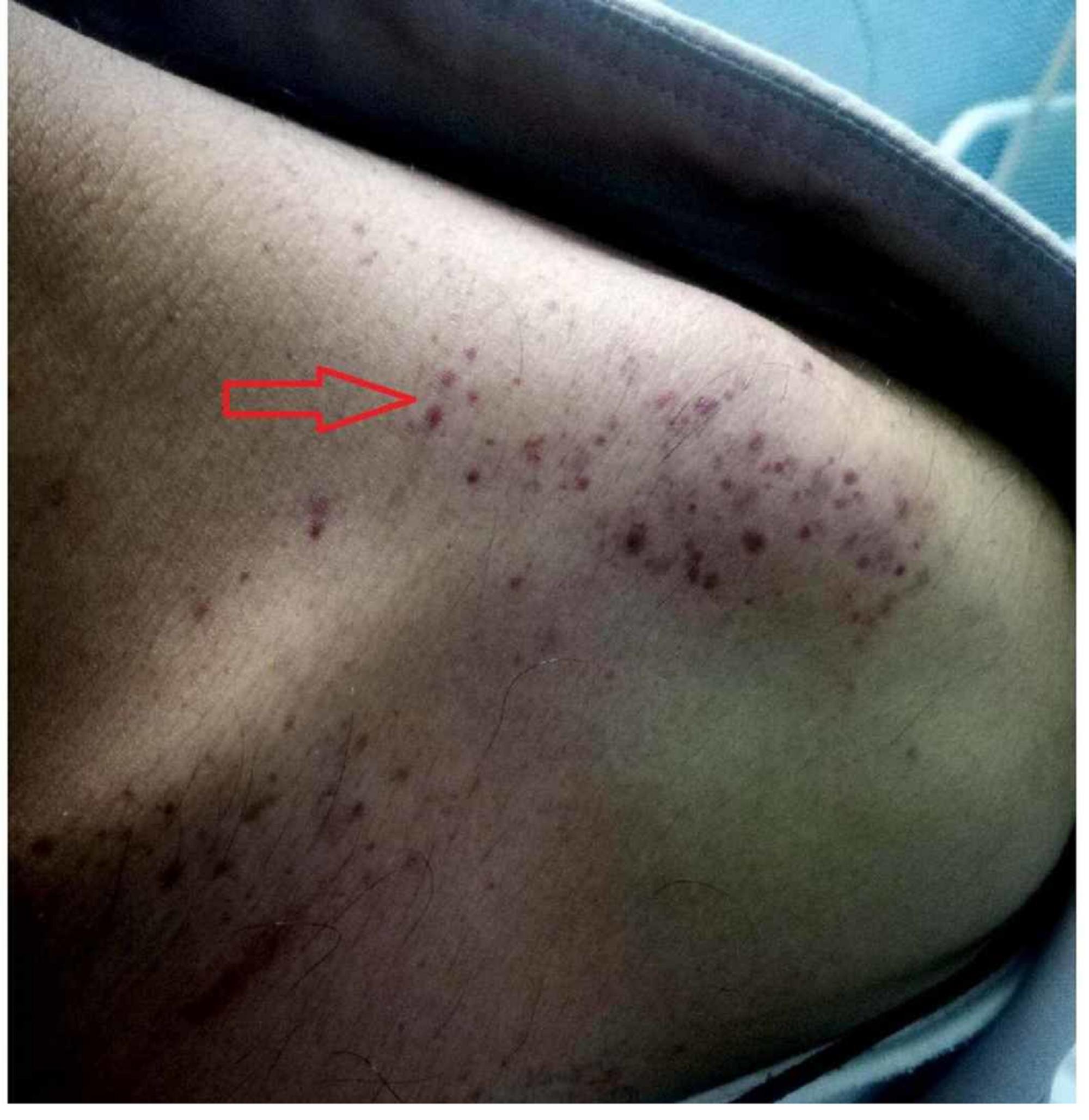 Dang humması hastasının sol omzunda çoklu purpura ve peteşi